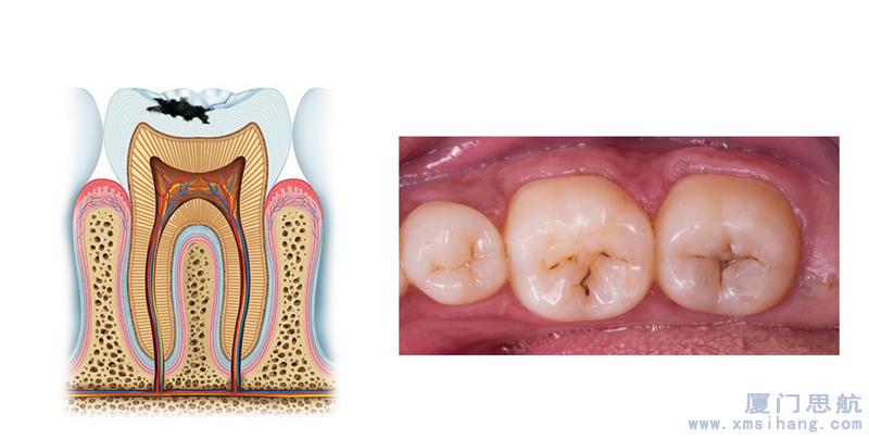 清洁牙齿表面牙斑菌
